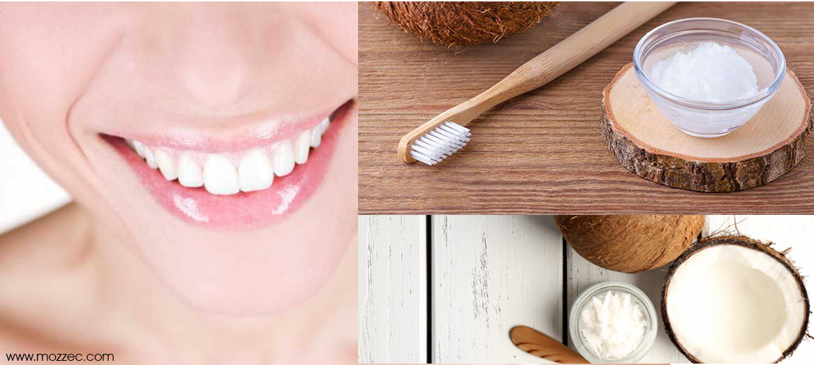 coconut oil for dental health
