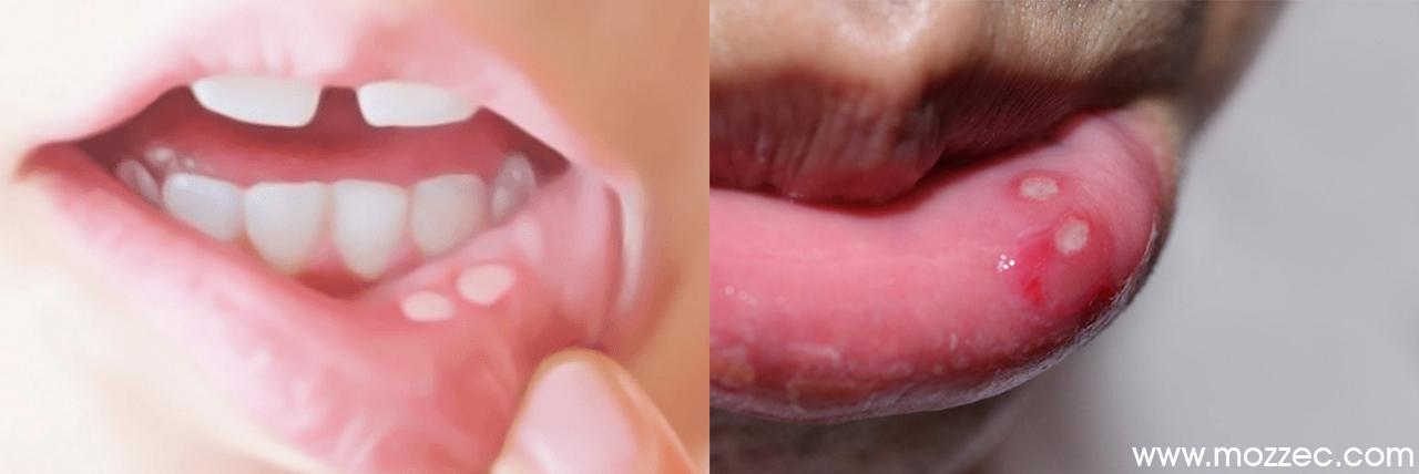 canker sore on tonsil Archives - Mozzec