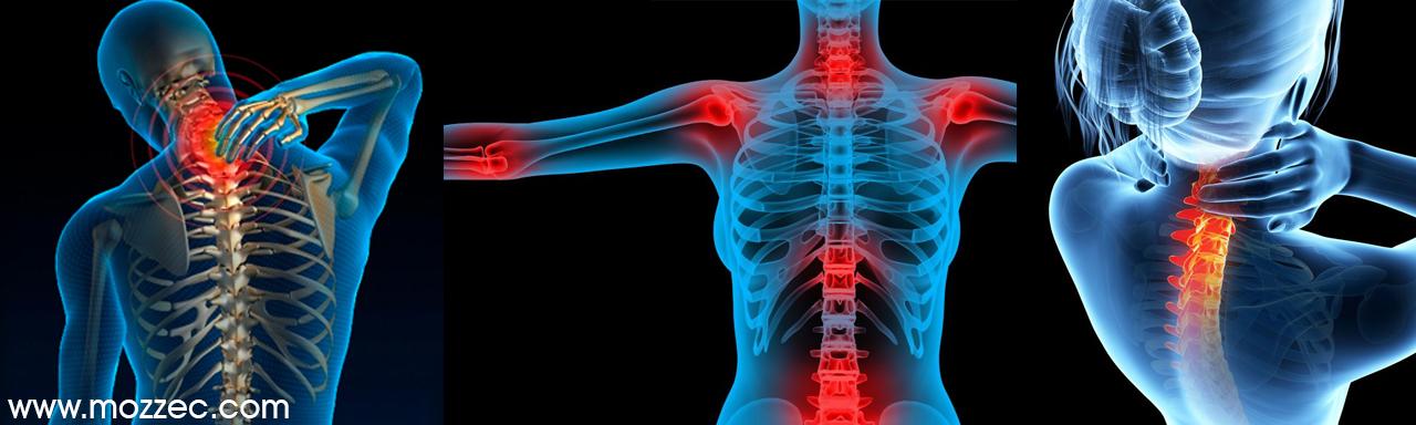 rheumatoid arthritis back pain